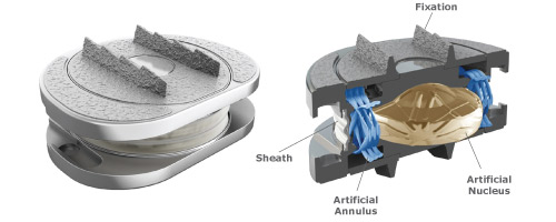 Spinal Kinetics M6 Disc Replacement